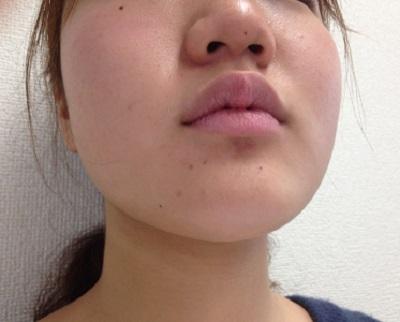 顎 白い ぶつぶつ 顔にニキビじゃないブツブツ|かゆい・白いのは?病院できれいに治る...