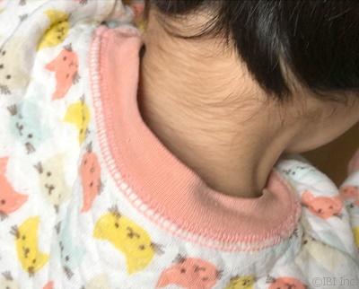 子供の産毛は大人よりも濃い